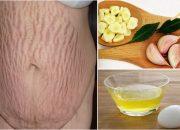 Tìm hiểu công dụng chữa rạn da của tỏi mà bạn chưa biết