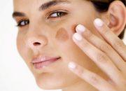 Mẹo hay điều trị thâm da bằng thực phẩm tại nhà
